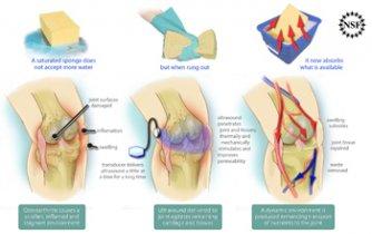 tratament termic articular